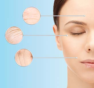 Skin tightening and wrinkle reduction