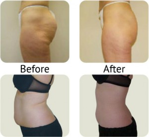 Lipofirm Plus - before and after