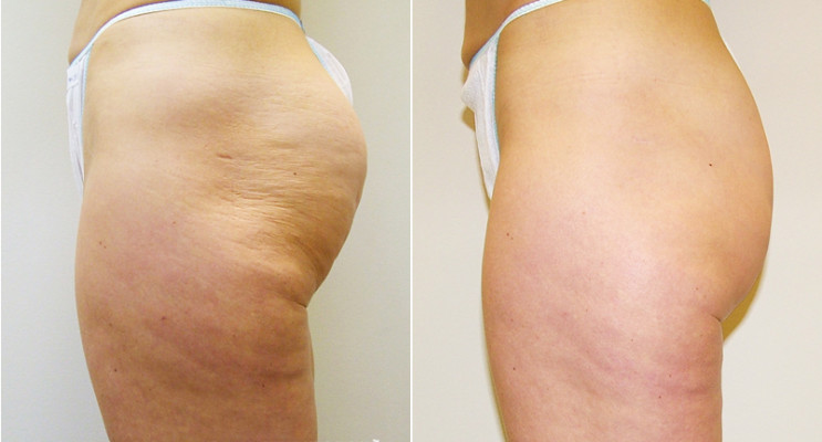 Cellulite - before and after