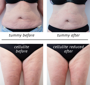 Tummy before and after; Cellulite before and after