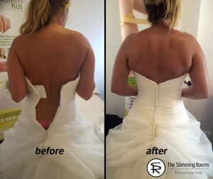 Wedding weight loss - before and after