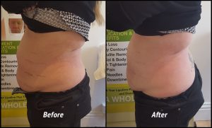 Kathie's size loss after just one treatment.