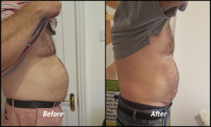 Robin's inch loss after 6 treatments with The Slimming Rooms